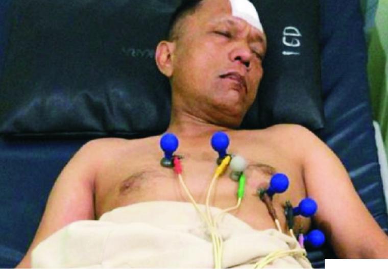 Oknum polisi Kompol Imam Zaidi Zaid (55) yang ditangkap dan ditembak karena terlibat sabu-sabu 16 Kg menjalani perawatan. Dia ditembak karena Kasi Ident Ditreskrimum Polda Riau itu berupaya kabur dari kejaran polisi, dan bahkan setelah beberapa kali tembakan peringatan, masih tetap kabur, Jumat (23/10/2020). I NEWS
